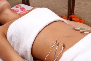 Acupunctura Estética